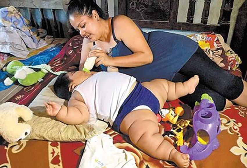 Luis Manuel with his mother: 28 kilos at 10 months.