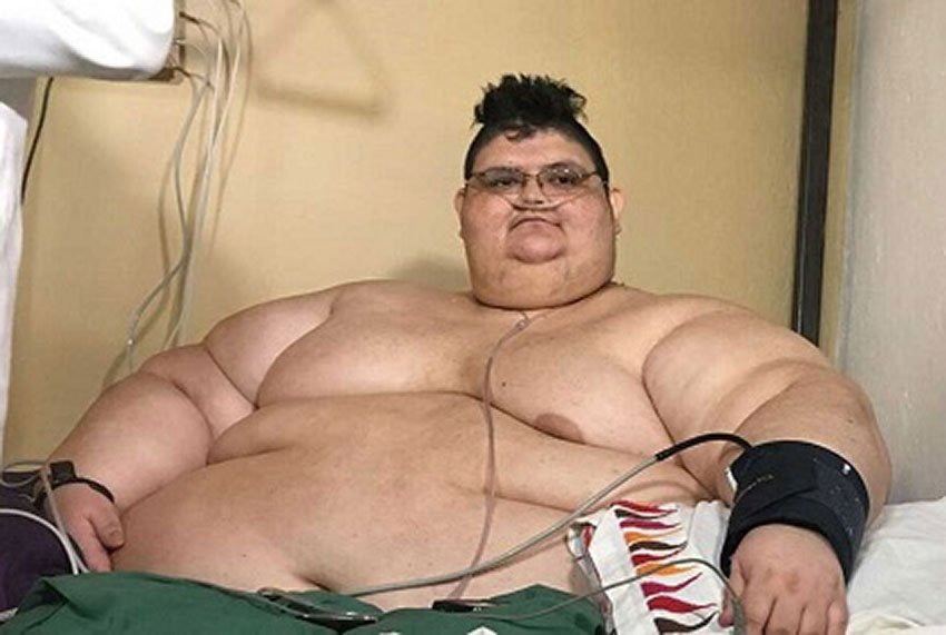 World S Most Obese Man Loses 300 Kilos And The Title