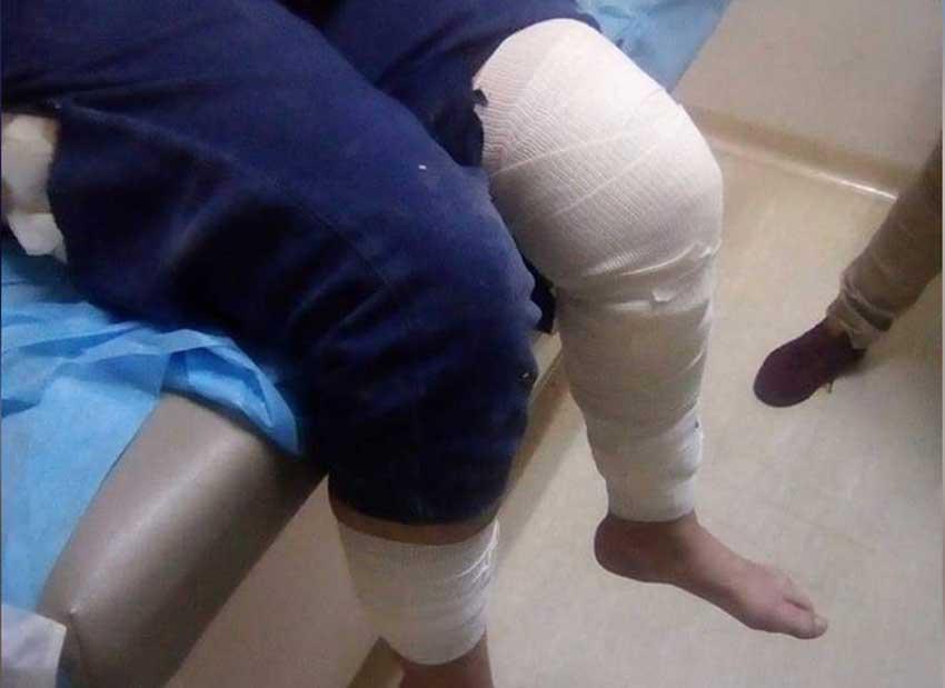 Dog attack victim in La Paz.