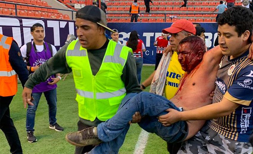 Beaten and bloodied, a fan is carried from the stadium on Sunday.