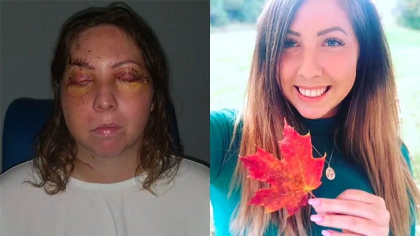 Leslie York, before and after her ordeal in a Tulum hotel.