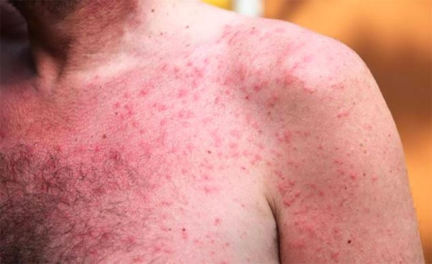 A victim of heat rash.